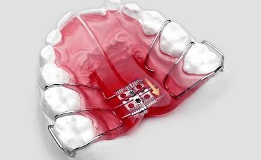 顎の発育を治療に利用できる小児の矯正