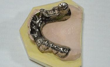 残っているすべての歯が守られるメタルプレート